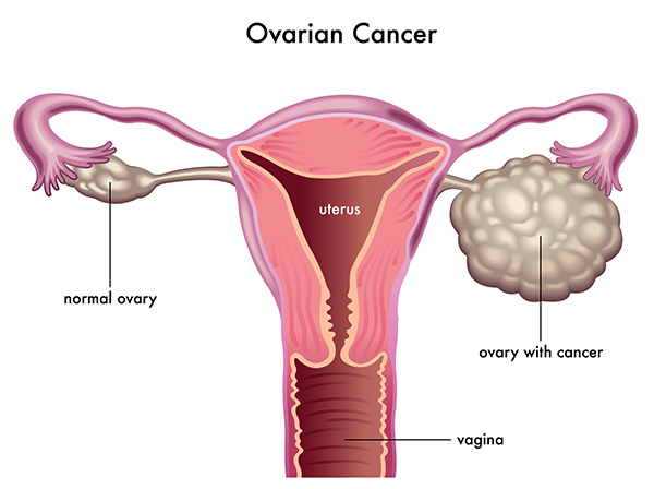 Cancer-ovarian_cancer