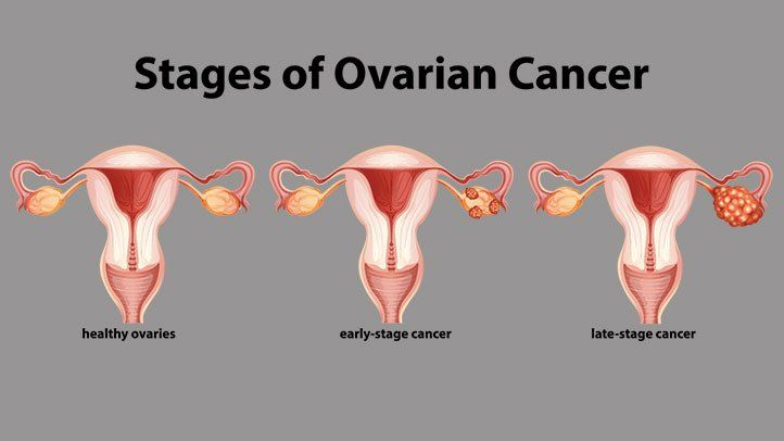 ovarian-cancer-stages-722x406