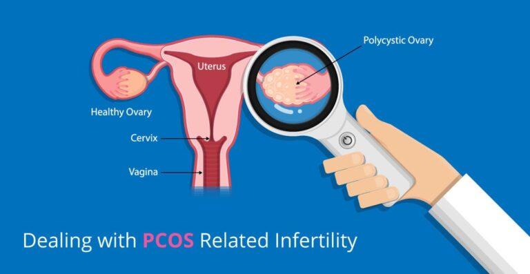 pcos-treatent-1